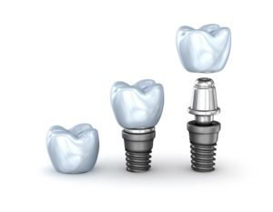 3d rendering of a dental implant used in place of a bone graft