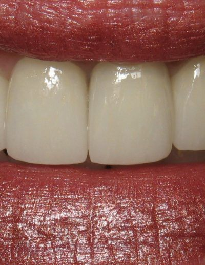 before-after-crowns-1.2-new