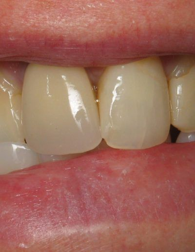 before-after-crowns-2.1-new
