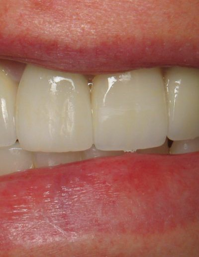 before-after-crowns-2.2-new