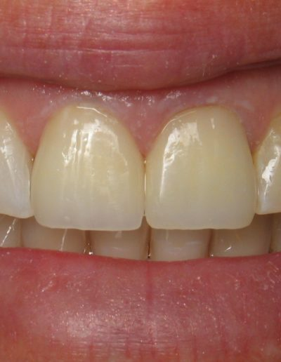 before-after-crowns-3.1-new