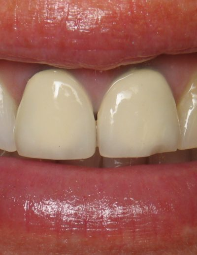 before-after-crowns-3.2-new