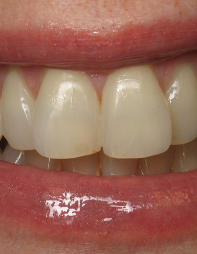 before-after-veneers-1.1-new