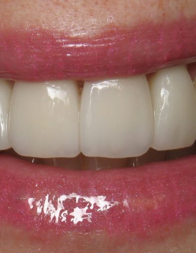 before-after-veneers-1.2-new