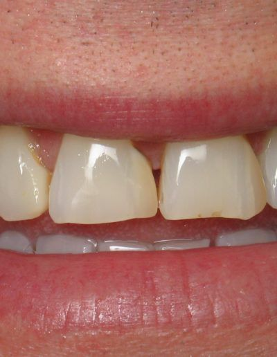 before-after-veneers-2.1-new