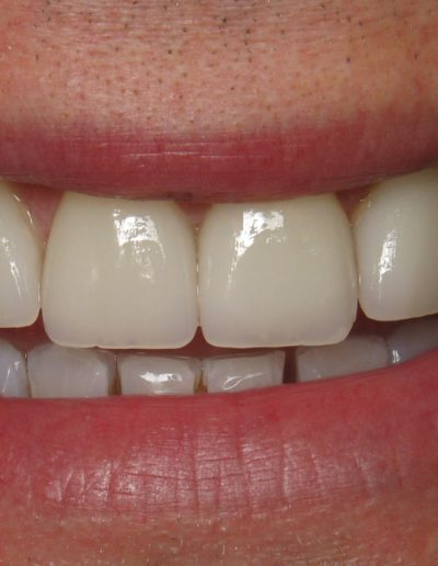 before-after-veneers-2.2-new