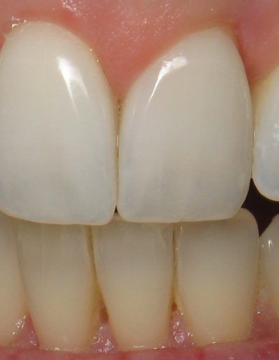 before-after-whitening-1-new