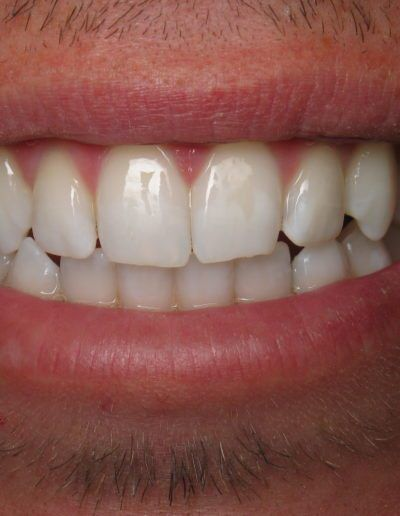 before-after-whitening-2-new